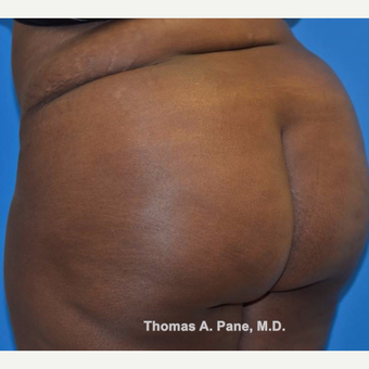 35-44 year old woman treated with Brazilian Butt Lift after 3364829