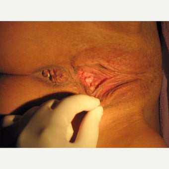 38 year old woman treated with perineoplasty, vaginoplasty, labiamajoraplasty before 2008310
