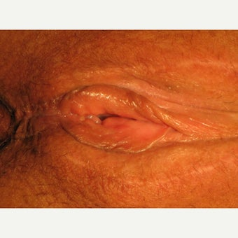 38 year old woman treated with perineoplasty, vaginoplasty, labiamajoraplasty after 2008310