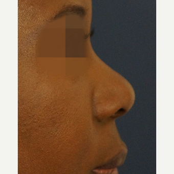 35-44 year old woman treated with Non Surgical Nose Job before 3244866