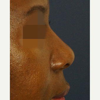 35-44 year old woman treated with Non Surgical Nose Job after 3244866