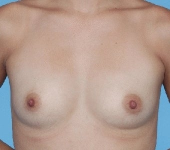 Breast augmentation with Saline implants before 67286