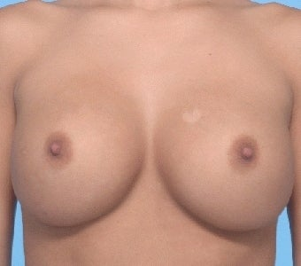 Breast augmentation with Saline implants after 67286