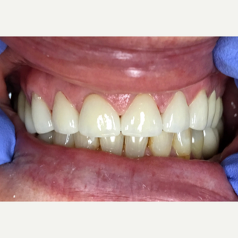 55-64 year old woman treated with Dental Crown after 2780566