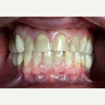 55-64 year old woman treated with Dental Crown before 2780566