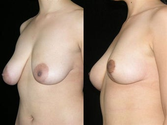 Mastopexy (breast lift) before 1053865