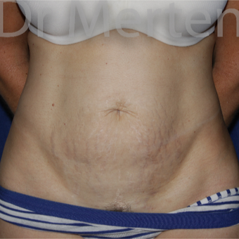 35-44 year old woman treated with Tummy Tuck before 3550252