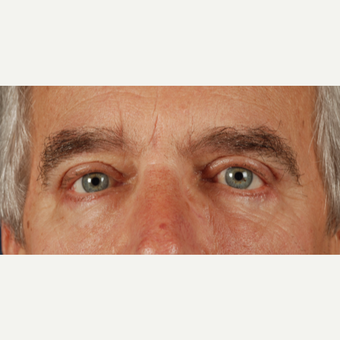 55-64 year old man treated with Eye Bags Treatment after 3037651