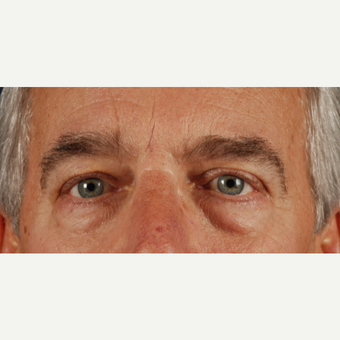 55-64 year old man treated with Eye Bags Treatment before 3037651