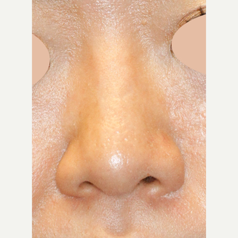 Asian Rhinoplasty To Augmentin Bridge, Project Tip an Narrow Nostrils after 3672422