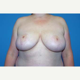 25-34 year old woman treated with Breast Reduction after 2998923