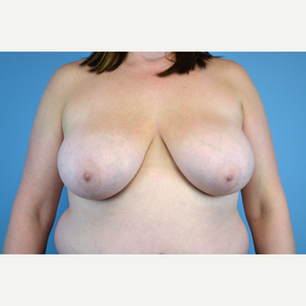 25-34 year old woman treated with Breast Reduction before 2998923