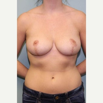 18-24 year old woman treated with Breast Reduction after 1569082