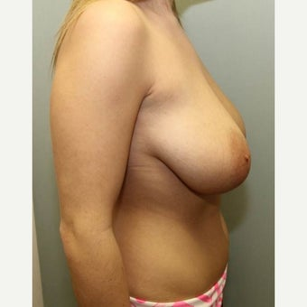 18-24 year old woman treated with Breast Reduction 1569082