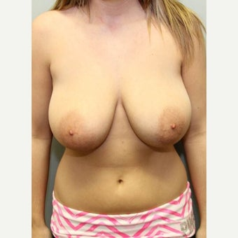 18-24 year old woman treated with Breast Reduction before 1569082