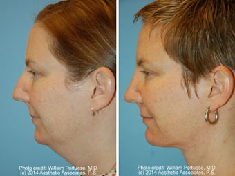 Neck Liposuction before 1389502