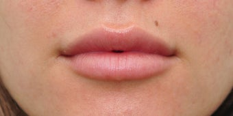 25-34 year old woman treated with Juvederm for lip augmentation after 2219099