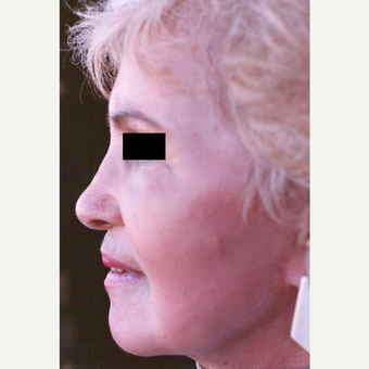 65-74 year old woman treated with Chemical Peel after 3543998