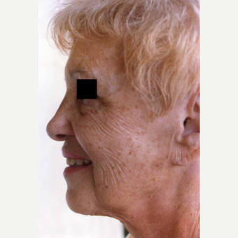 65-74 year old woman treated with Chemical Peel before 3543998