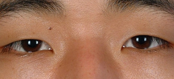 Asian Eyelid Surgery before 1208019