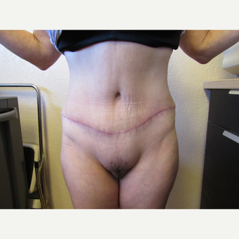 45-54 year old woman treated with Tummy Tuck after 3412861