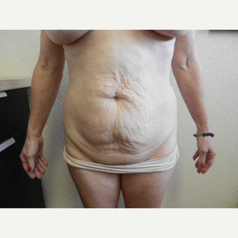 45-54 year old woman treated with Tummy Tuck before 3412861