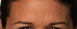 Close up of Botox relaxing frown lines in my female patient after 1328548