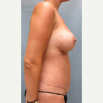 25-34 year old woman treated with Mommy Makeover after 3174656