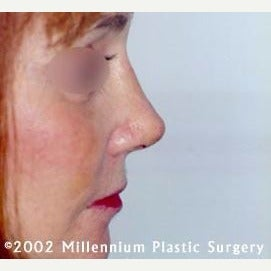 35-44 year old woman treated with Nose Surgery