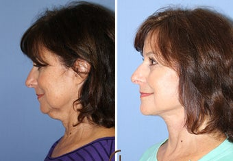 Neck Lift Performed Under Local Anesthesia  252433