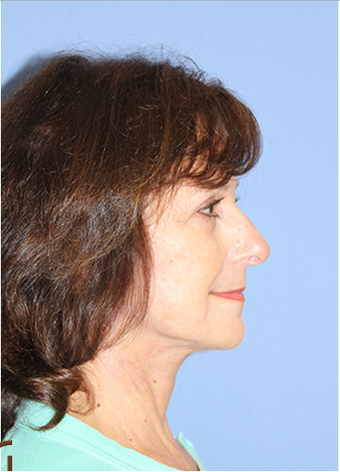 Neck Lift Performed Under Local Anesthesia  after 252433