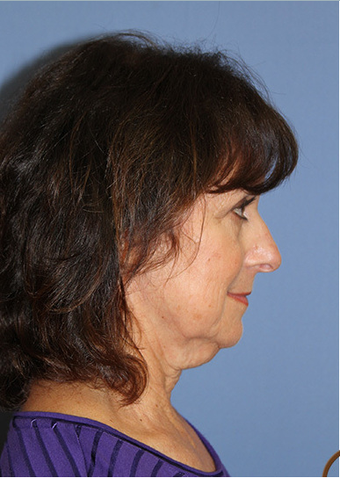 Neck Lift Performed Under Local Anesthesia  before 252433