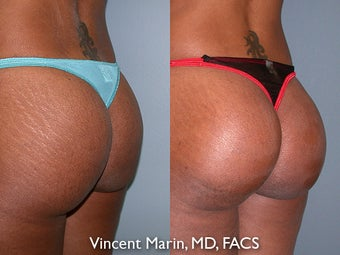 Buttock Implants after 990838