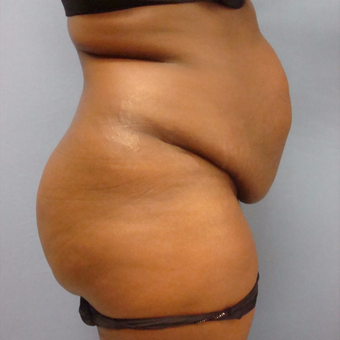 25-34 year old woman treated with Tummy Tuck before 3448288