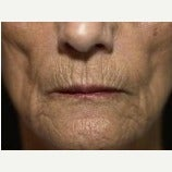 65-74 year old woman treated with Lip Augmentation before 2643872