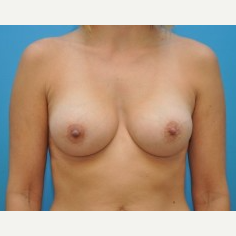 25-34 year old woman treated with Breast Augmentation after 3669230