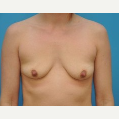 25-34 year old woman treated with Breast Augmentation before 3669230