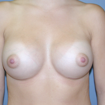26 year old woman treated with Breast Augmentation after 3041718