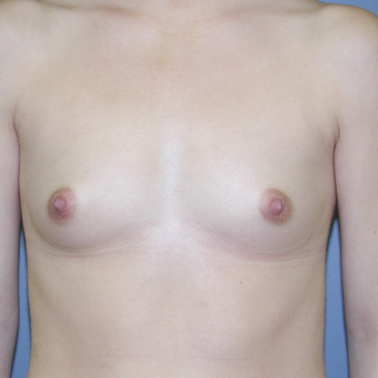 26 year old woman treated with Breast Augmentation before 3041718