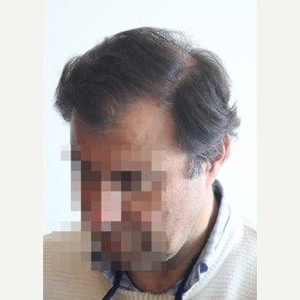 45-54 year old man treated with Hair Transplant after 3069791