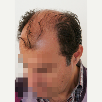 45-54 year old man treated with Hair Transplant before 3069791