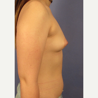 25-34 year old woman treated with Breast Augmentation before 3095769
