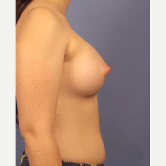 25-34 year old woman treated with Breast Augmentation after 3095769
