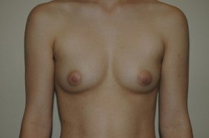 Transgender, female to male. Removal gland and nipple reduction. before 1130371