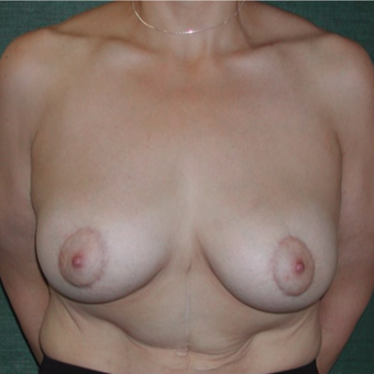 45-54 year old woman treated with Breast Augmentation after 3168012