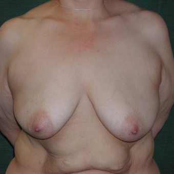 45-54 year old woman treated with Breast Augmentation before 3168012