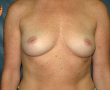 Breast Implants before 3545066