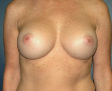 Breast Implants after 3545066