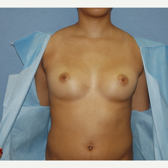 25-34 year old woman treated with Breast Augmentation before 3124677
