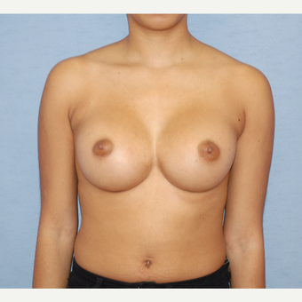 25-34 year old woman treated with Breast Augmentation after 3124677